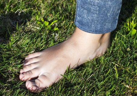 Fersenspor – Ursachen, Behandlung und Hausmittel zur Bekämpfung