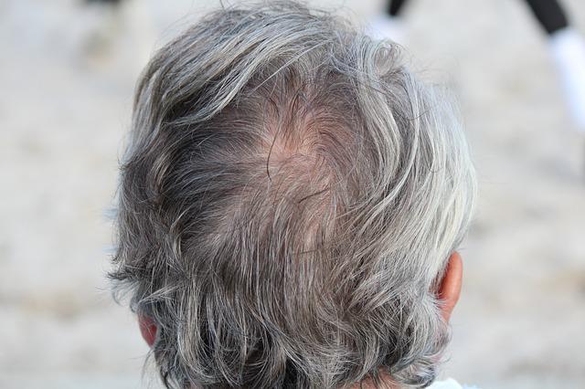 Hausmittel gegen graue Haare – was hilft?
