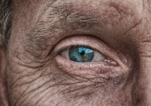 Trockene Haut – Wie mit Hausmitteln einfach bekämpfen?